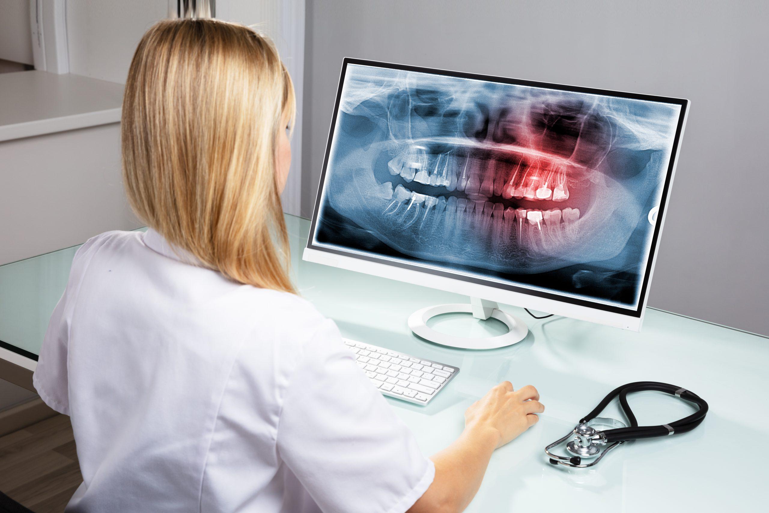 Dentist Examining Teeth X-ray On Computer